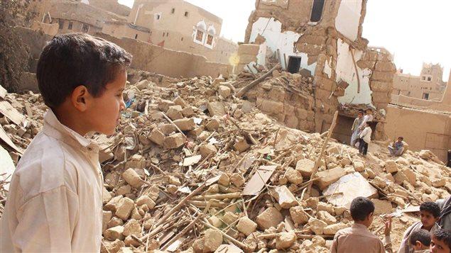 Los niños de Yemen; los olvidados en una guerra ignorada