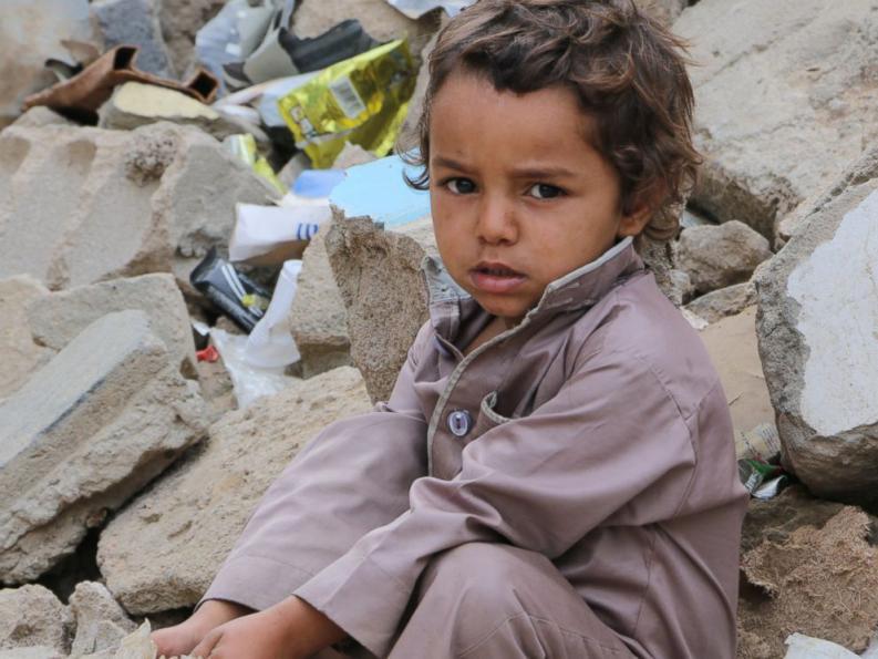 Al borde de la hambruna: Yemen, el país más pobre de Medio Oriente, vive una angustiante realidad