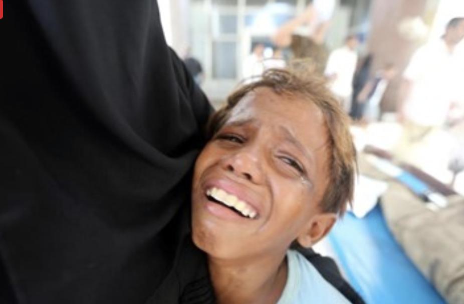 91.000 personas muertas en Yemen por combates y bombardeos.
