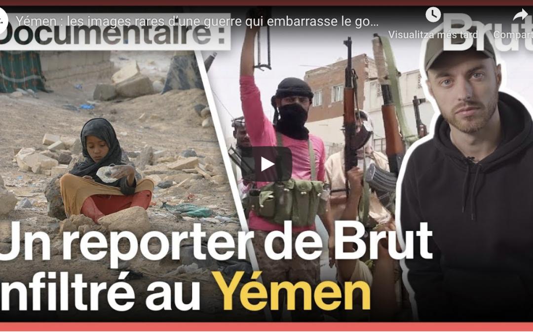 Yemen, raras imágenes de una guerra que avergüenza al gobierno francés