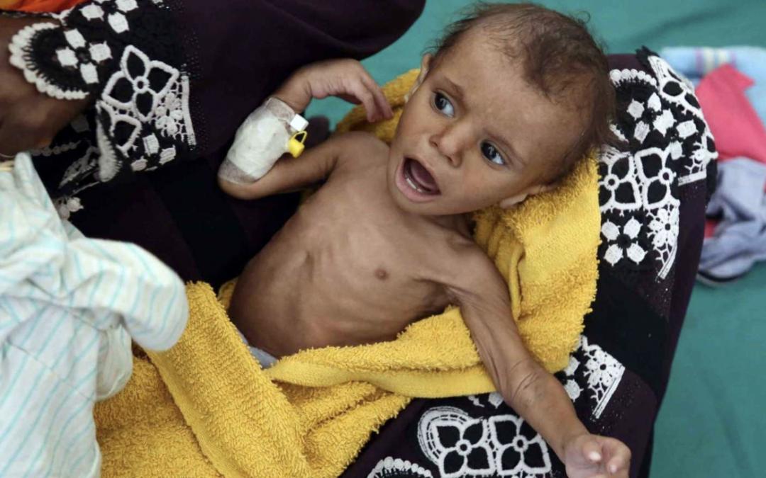 Unos 17.000 niños en Yemen se mueren de hambre