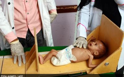 Los niños raquíticos, consecuencia de 5 años de guerra en Yemen